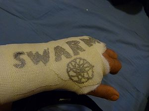 SWARM in a cast.jpg